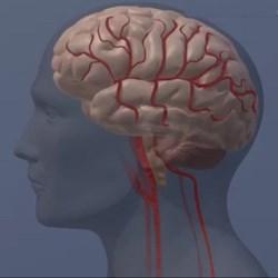 Pfizer to end Alzheimer's, Parkinson's research