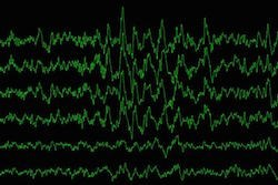 Brain waves during slow-wave sleep are measured as a study participant sleeps. (Image: Yo-El Ju)