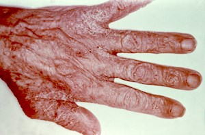 This person's hand reveals a scabies infestation, especially visible in the area of the webbing between the fingers. Credit: Reed and Carnrich Pharmaceuticals.